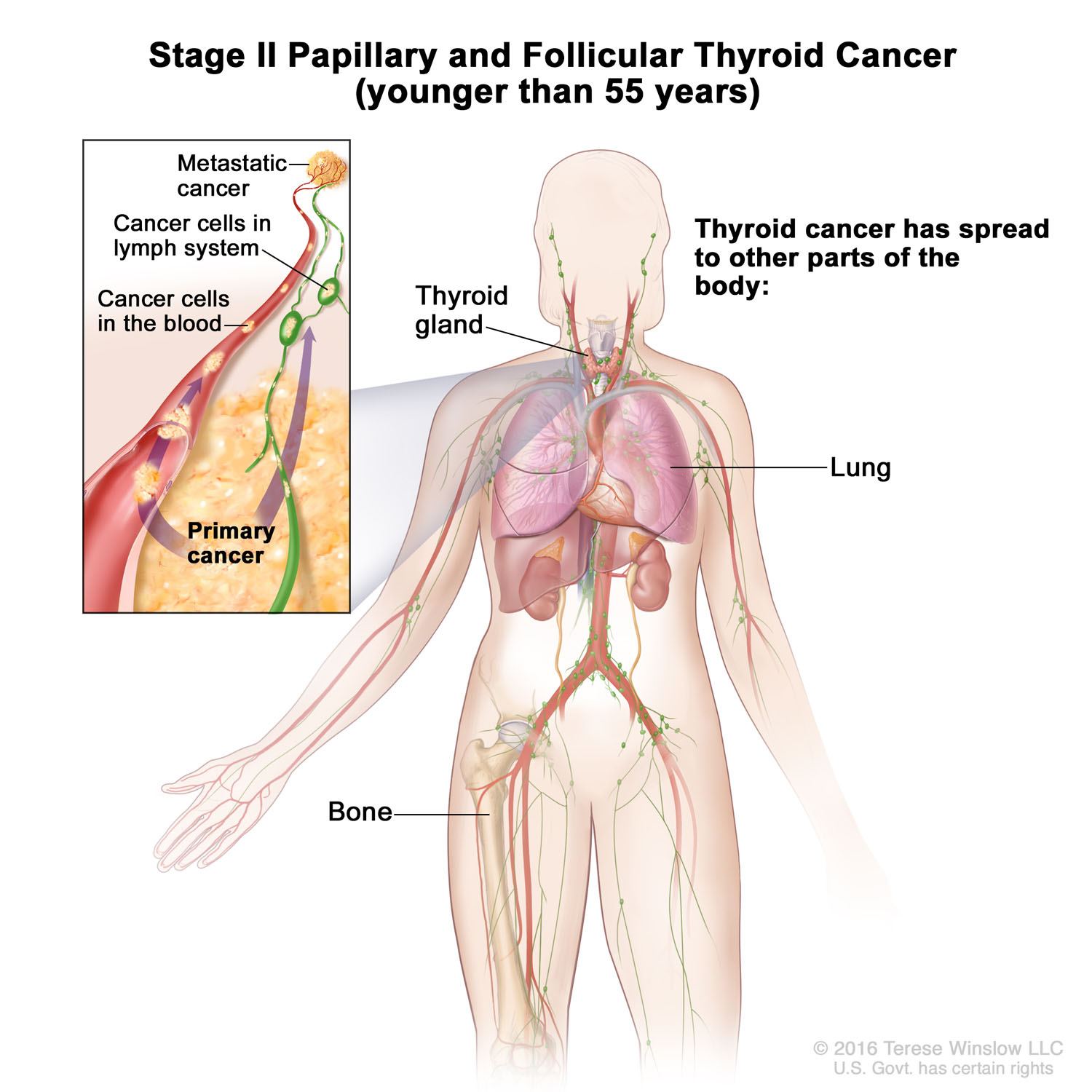 thyroid-cancer-papillary-follicular-stage2-younger55.jpg