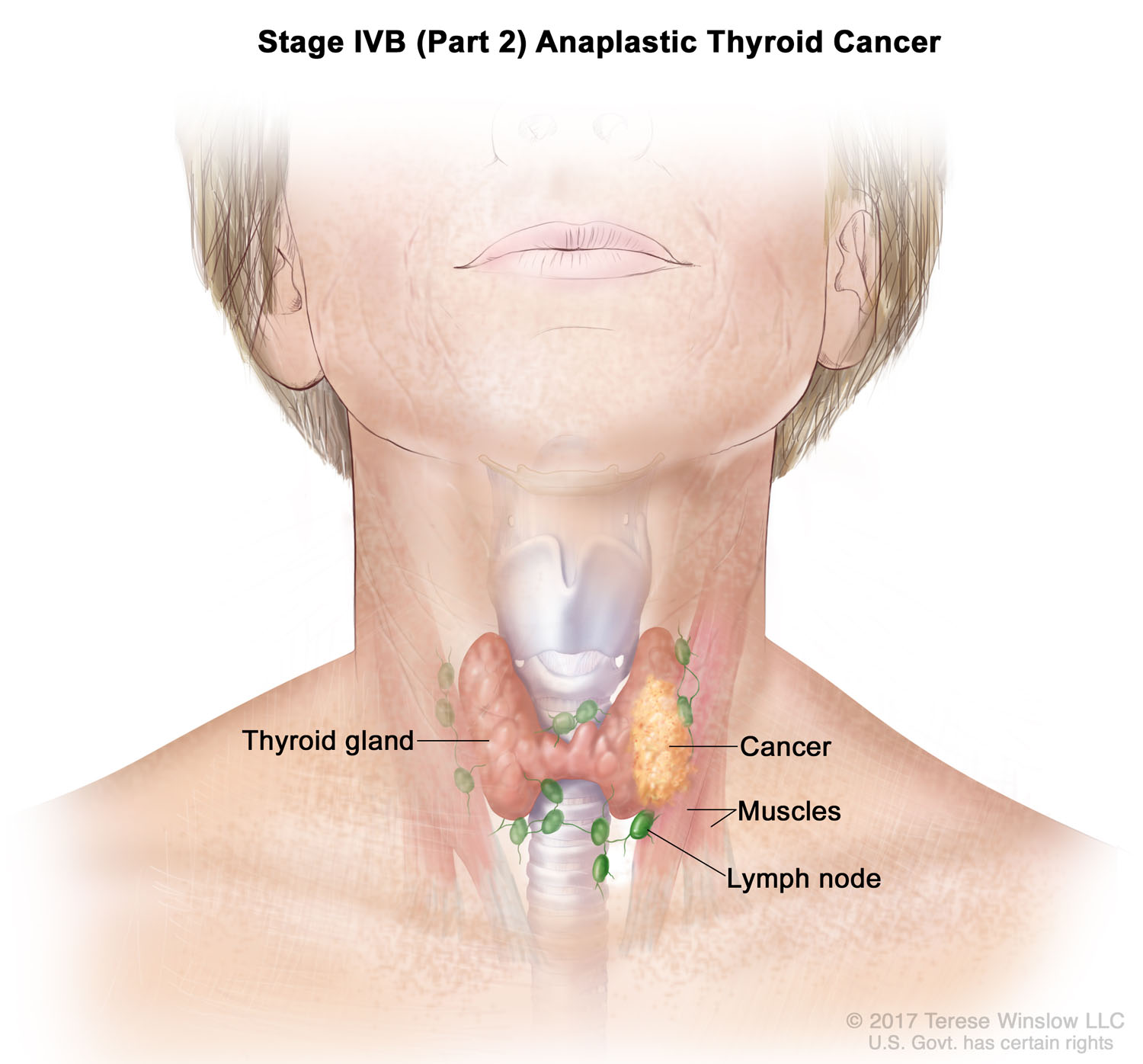 thyroid-cancer-anaplastic-stage4bpart2.jpg