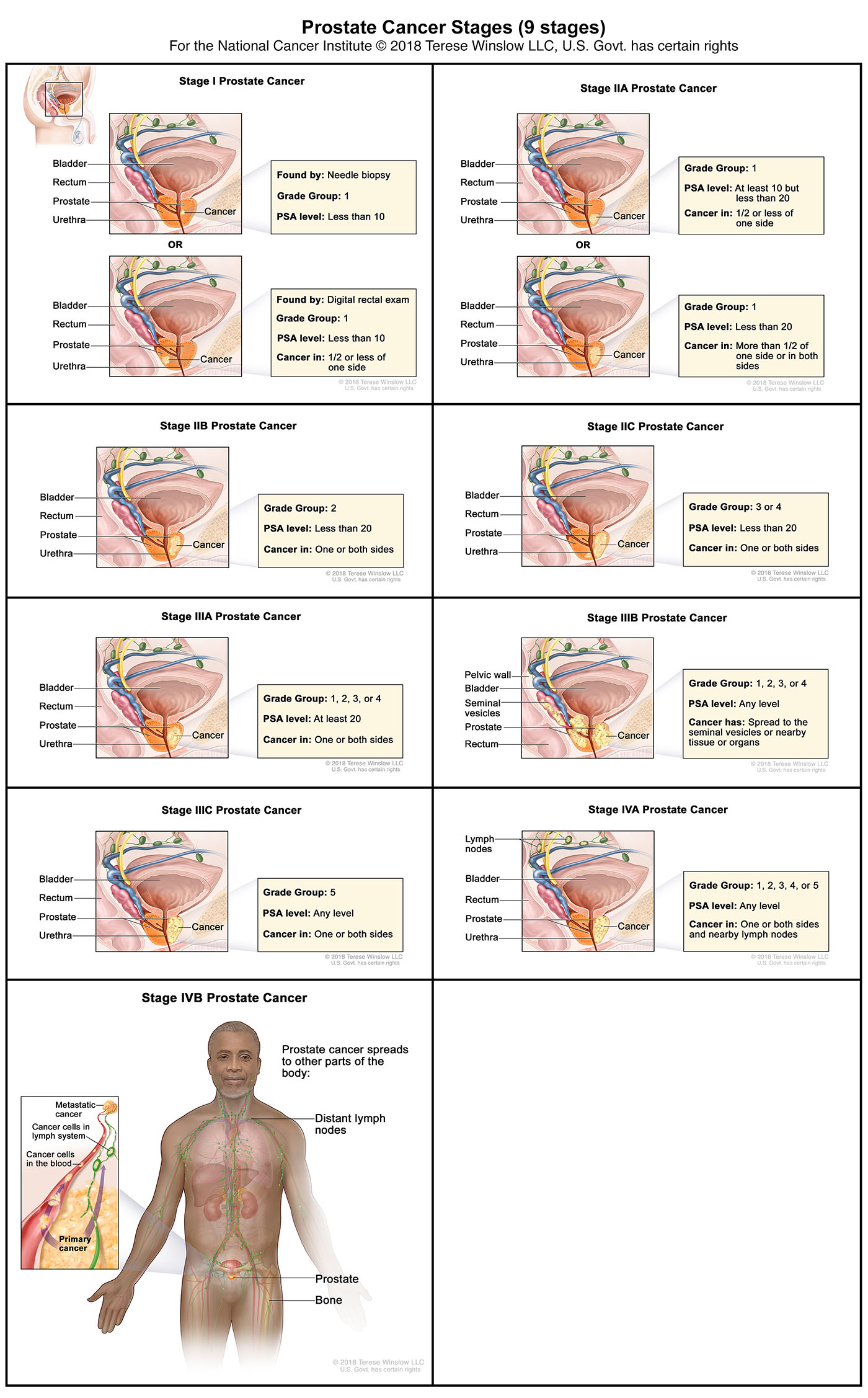 Prostate Cancer Stages (AJCC 8th edition)