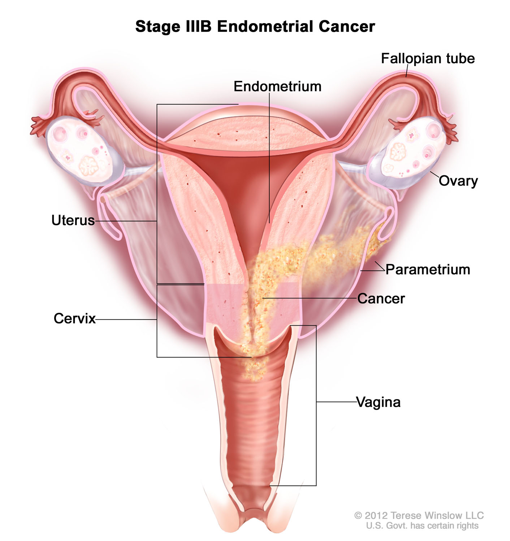 endometrial-cancer-stage3b.jpg