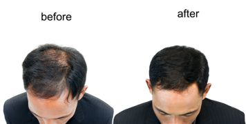 Micro needling is great for hair restoration