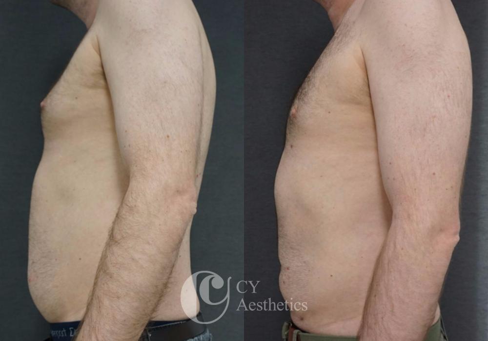 Gynaecomastia (Male Breasts) Surgery