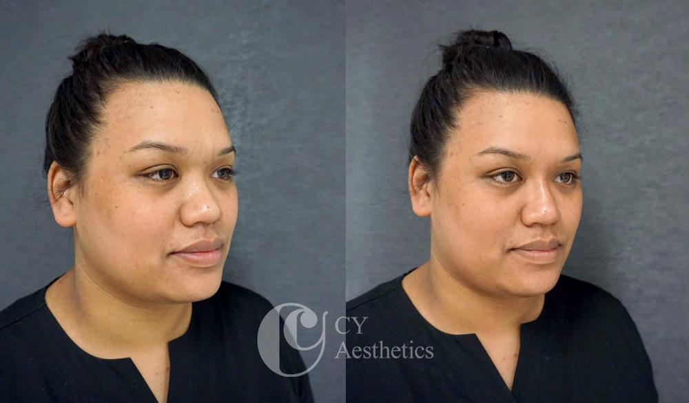 Non-surgical Nasal Augmentation