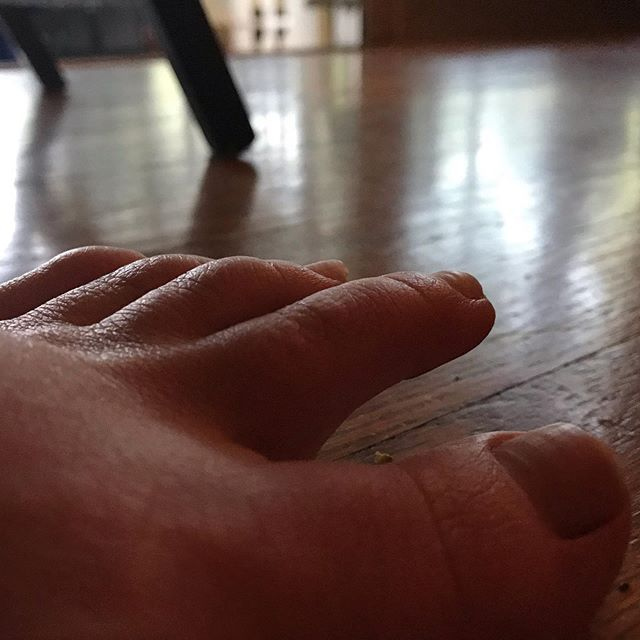 One of the more bizarre symptoms of the functional Neurological Disorder I live with now, is my toes will 'pull back' on their own . It's no longer painful, but most definitely uncomfortable . My hands and feet run cold 🥶 due to my Hashimotos (autoimmune disorder impacting the thyroid), and I think this has something to do with the symptom . Anyone else have this symptom? I'd like to know what you do for it . . . . . . . . . . #kayteezee #functionalneurologicaldisorder #conversiondisorder #hashimotosthyroiditis #autoimmunedisease l#nervoussystem #neurologicaldisorder #BodiesAreStrange