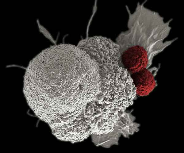 An oral squamous cancer cell (white) being attacked by two cytotoxic T cells (red), part of a natural immune response.  [National Cancer Institute]