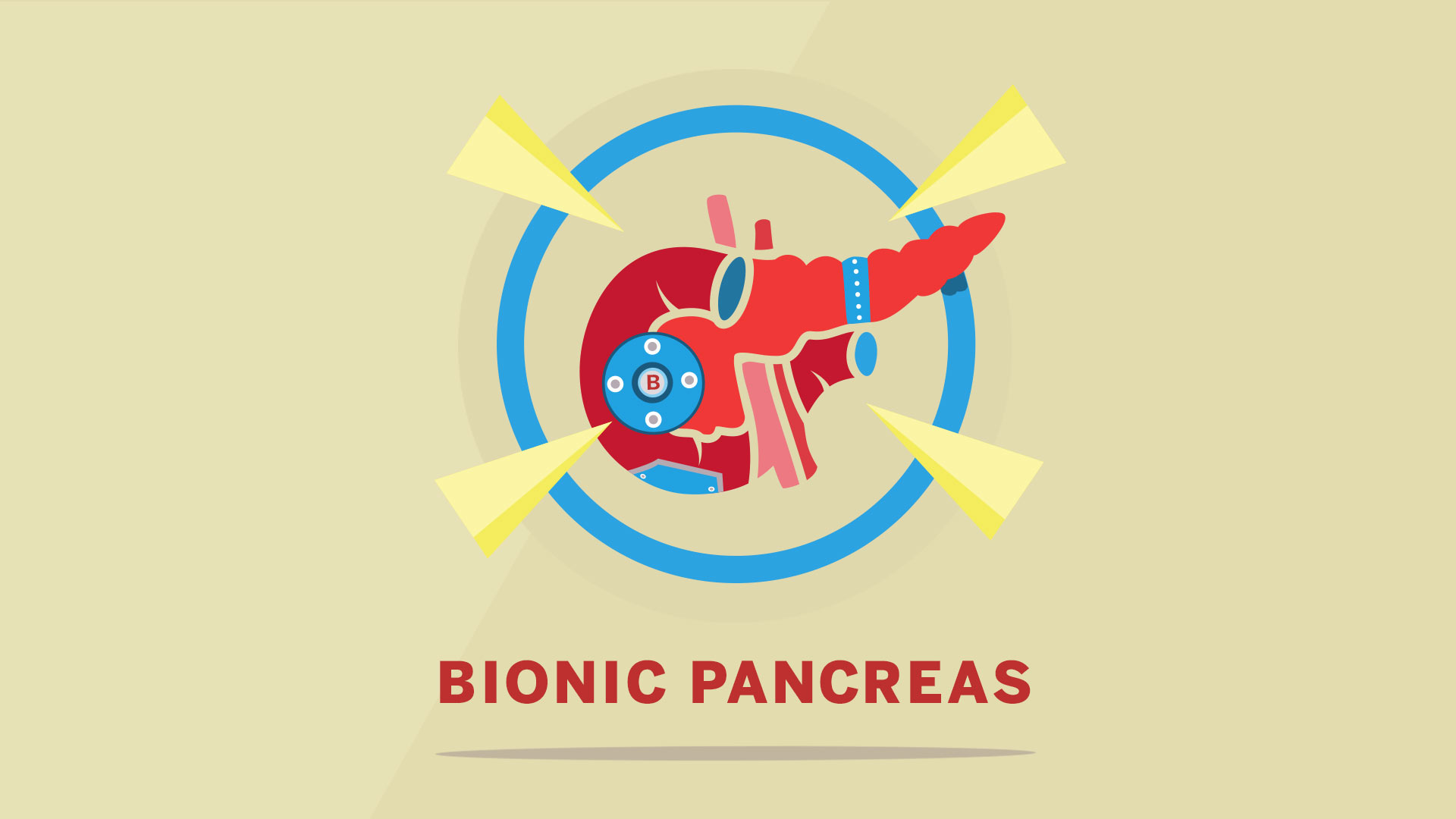 BU_B_Bionic_Pancreas.jpg