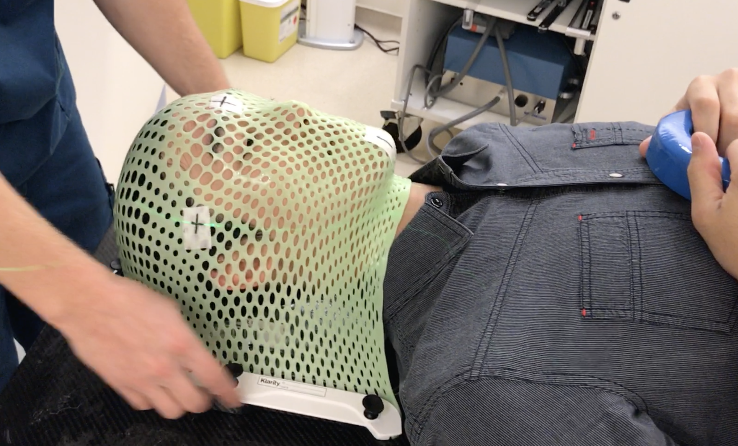 I experienced the creation of a proton therapy immobilization mask to understand the patient experience. - Research visit to the Chicago Proton Center