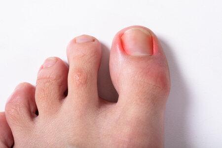 121140431_S_ingrown_toenail_red_sore_pain_toe.jpg