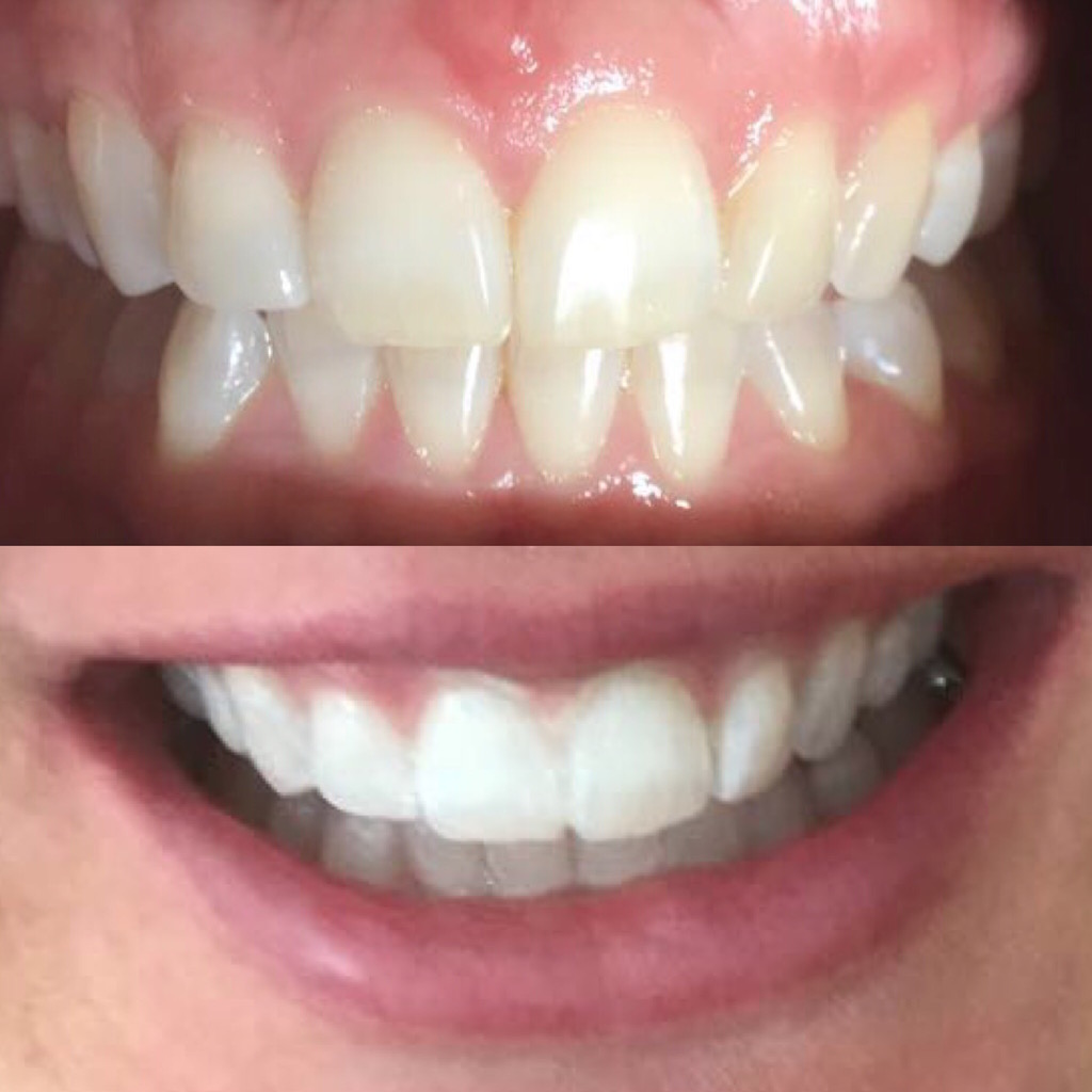 Before and straight after the treatments (this is me: Alison Morgan)