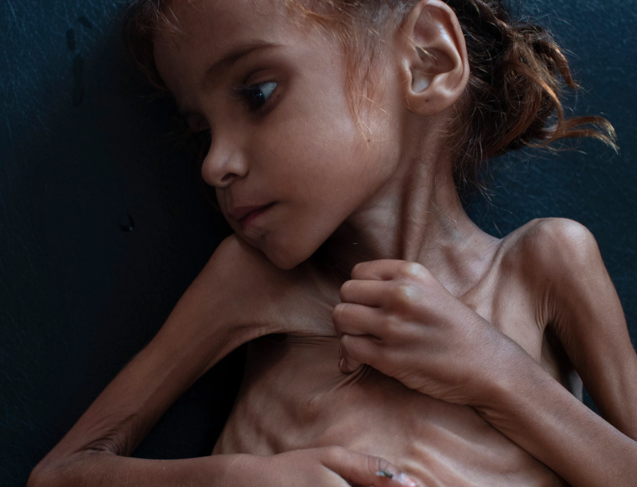 A seven year-old Yemeni girl named Amal Hussain suffers from acute malnutrition as a result of an impending widespread famine in Yemen. Photo: Tyler Hicks/ The New York Times