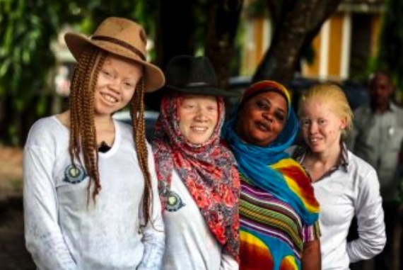 About one in every 1,400 people in Tanzania has albinism. This is significantly higher than the world average, which is about one in every 20,000 people. Photo:  ABC News .