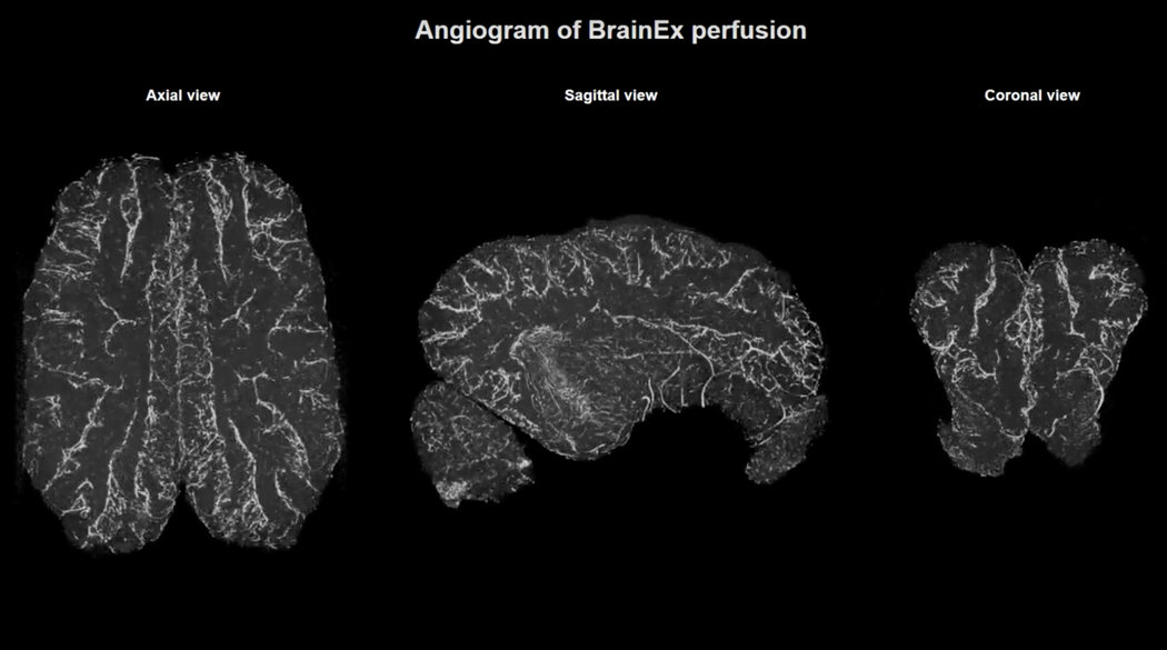 Angiogram of pig brains BrainEX perfusion. Photo Credit:Video by Vrselja, et al./Nature |  NY Times
