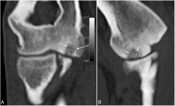 Fig 4 A y B.    Imágenes de TC en planos dorsal (A) y sagital (B) del codo de un perro con OCD del cóndilo medial del húmero. Se observa un defecto subcondral (flechas blancas) rodeado por un halo de esclerosis.