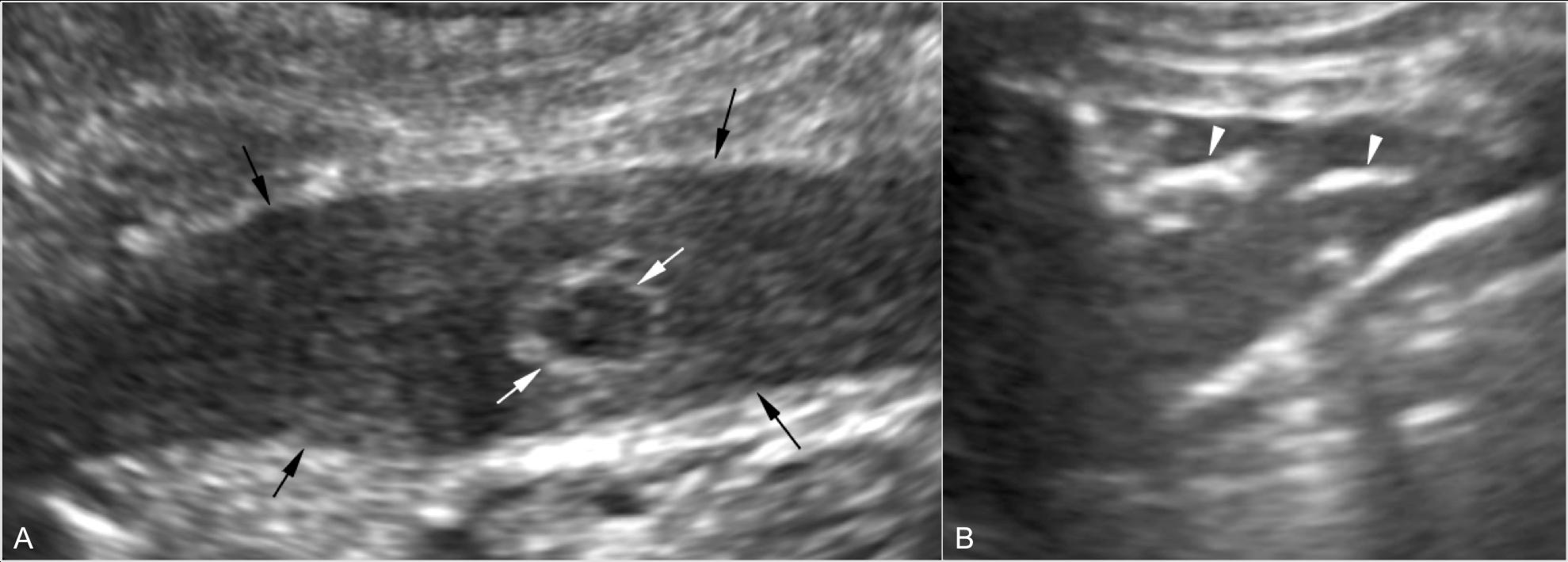 Figura 3. Imágenes ecográficas de un lóbulo pulmonar consolidado (flechas negras) con un broncograma lleno de líquido (flechas blancas) (A) y con broncogramas aéreos (puntas de flecha blancas) (B).