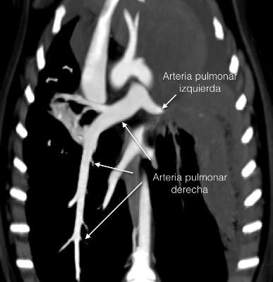 Figura 5. Reconstrucción dorsal postcontraste donde se observa la terminación abrupta de la arteria pulmonar izquierda (donde cabría esperar la rama del lóbulo craneal).
