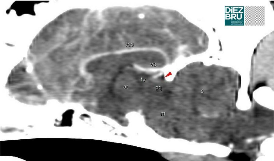 Fig 1.    Imagen normal del cráneo en un estudio de TC postcontraste de un perro. Reconstrucción sagital a nivel de la línea media, en ventana tejido blando. Flecha roja: cisterna cuadrigémina; pq: tecto del mesencéfalo; at: adhesión intertalámica ; tv: tercer ventrículo (a nivel de la glándula pineal); m: tronco del encéfalo; c: cerebelo; vcc: vena del cuerpo calloso; vc: vena cerebral interna.