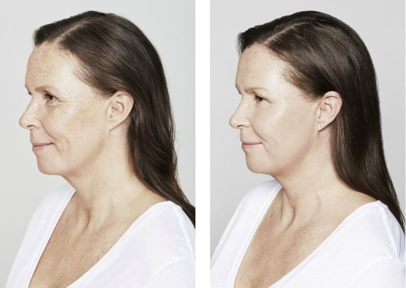 restylane before and after.JPG