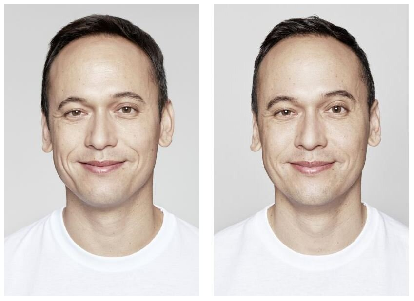 Restylane Before and after 2.jpg