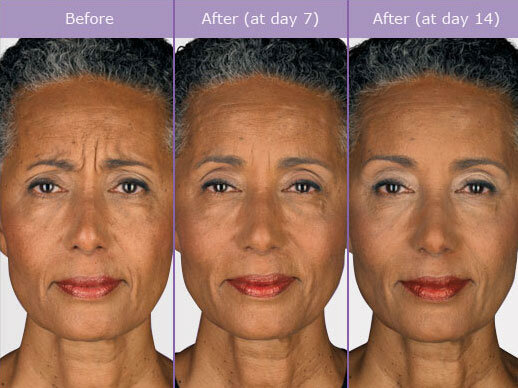 BOTOX BEFORE AND AFTER 3.jpg