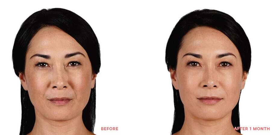 Juvederm BEFORE AND AFTER XC.JPG