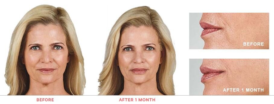 Juvederm BEFORE AND AFTER 1.JPG