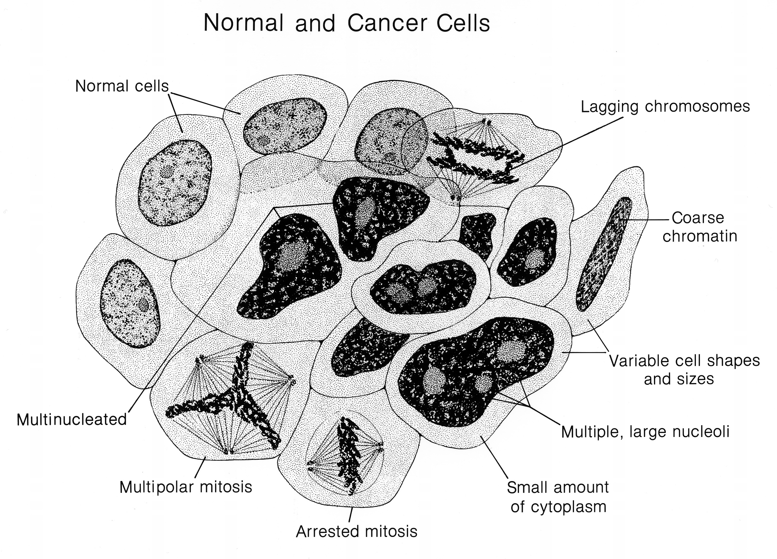 Photo: National Cancer Institute