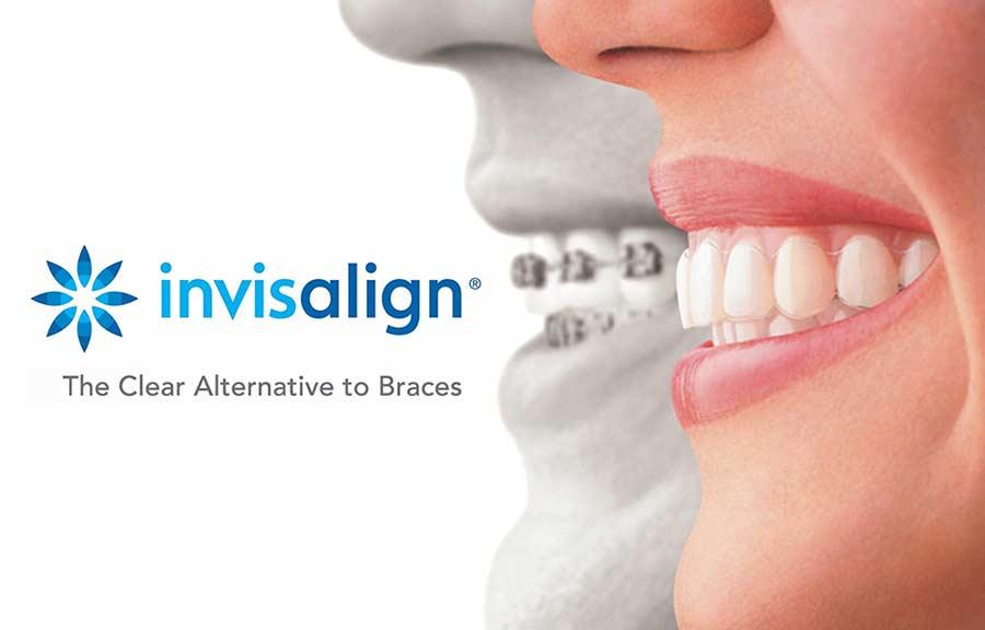 Invisalign® | Carson City, NV | Carson City Orthodontics — Carson City  Orthodontics