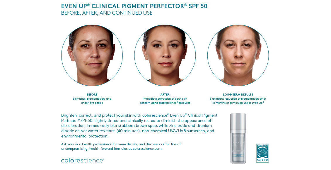 Colorescience-even-up-Before-and-After-Picture.jpg