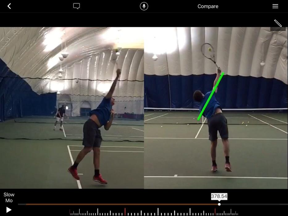 Same serve, different angles using two cameras with Hudl Technique.
