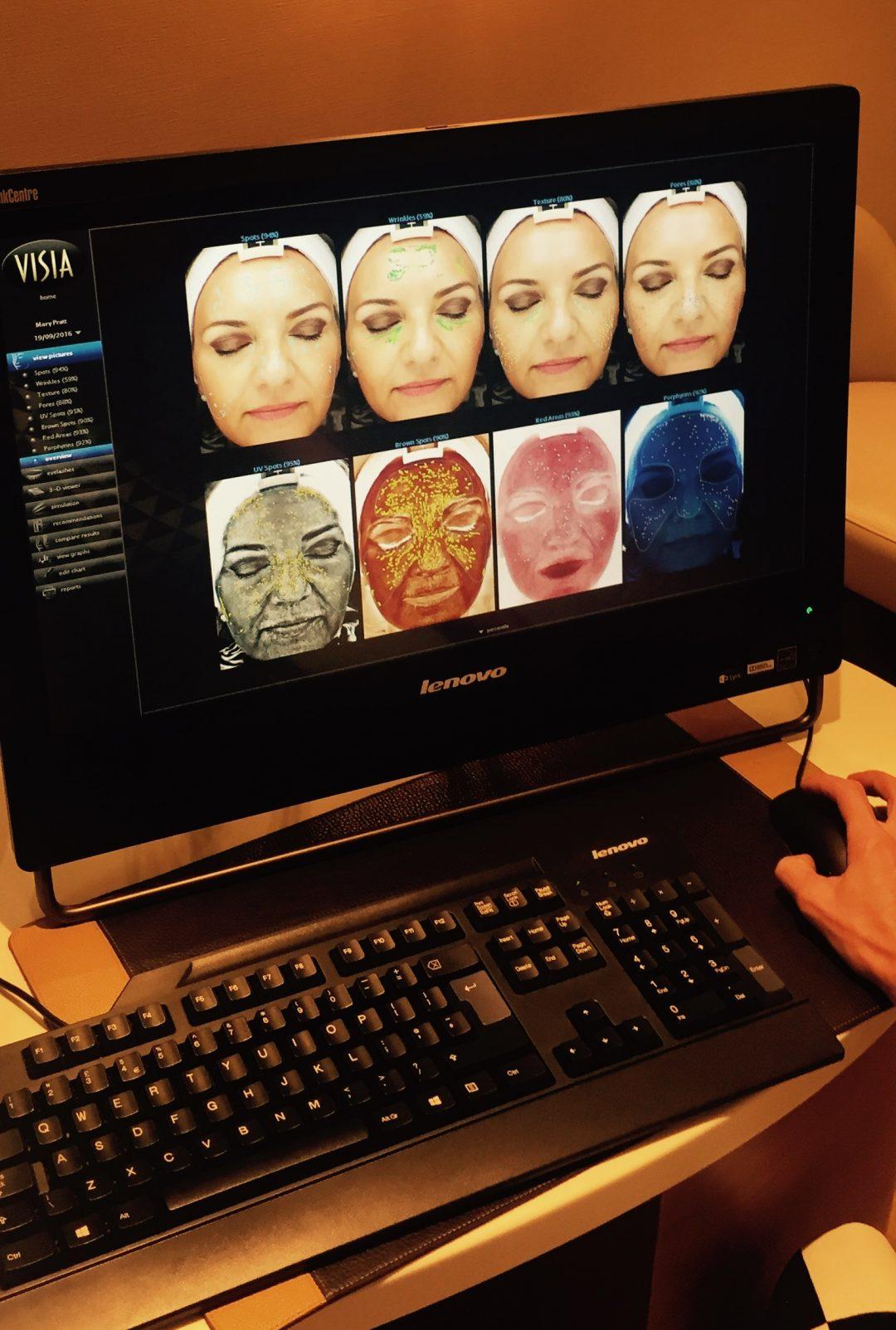 Pra's Visia skin analysis