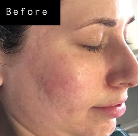 Face before microneedling