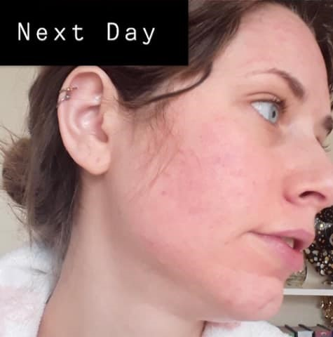 Face the day after microneedling