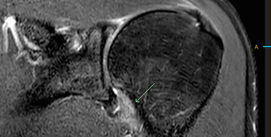 MRI-frozen-shoulder-copy.jpg