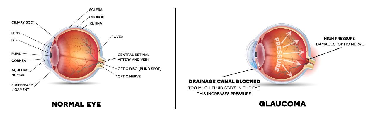 Glaucoma_Diagram.jpg