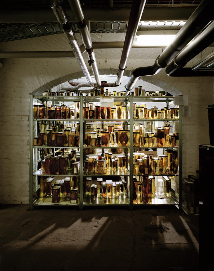 Brains, The Mind as Matter: Charite teaching hospital Berlin, Medical Historical Museum cellars: From 2011, the resting-place for the brains previously used for study.