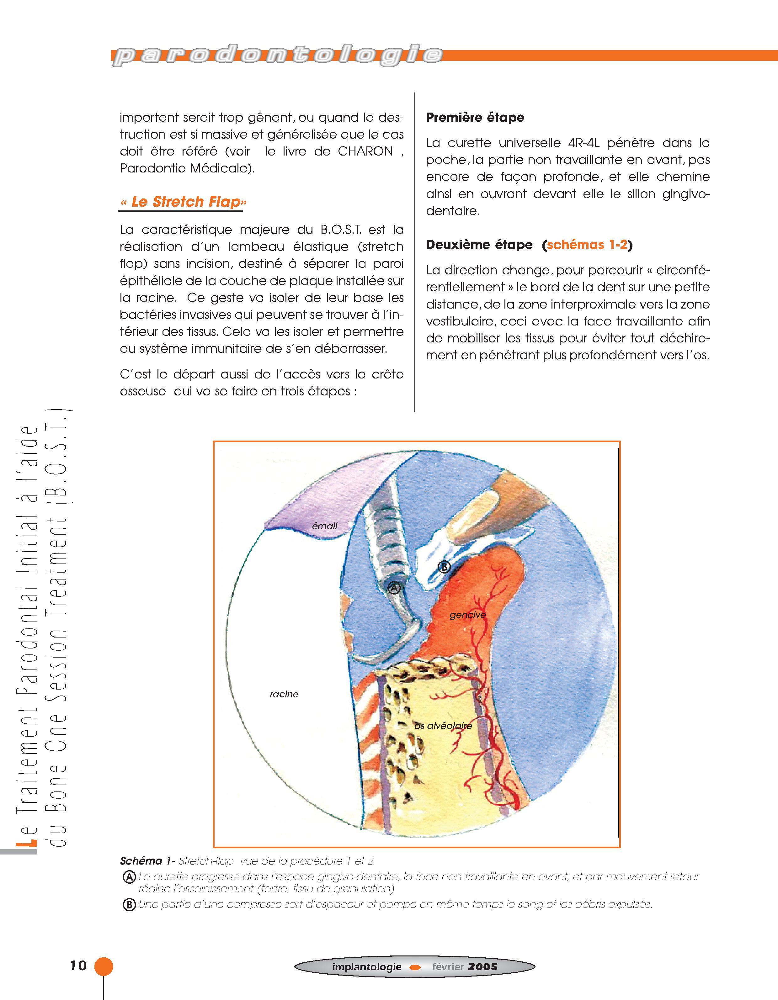 Implantologie BOST Article 14 BLZ-4.jpg