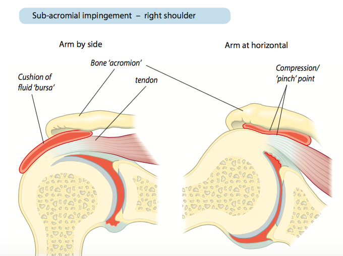 Shoulder Impingement.png