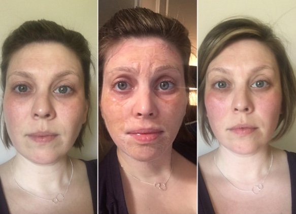 Enzyme+ Oxygen Facial - Before, During, After