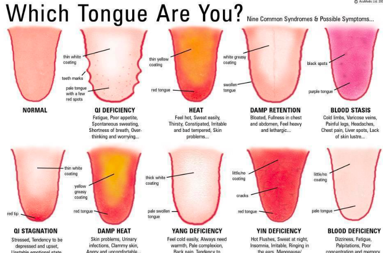which tongue are you? Chinese tongue diagnosis