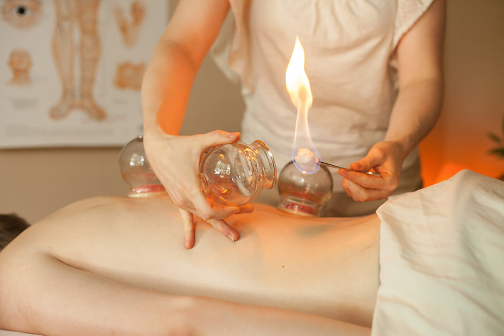 Fire-Cupping-Therapy.jpg