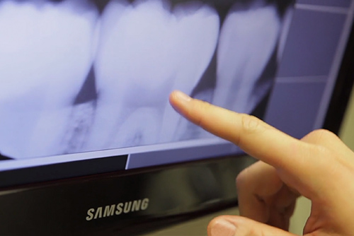 doctor pointing at an irregularity on a digital x-ray of teeth shown on tv screen