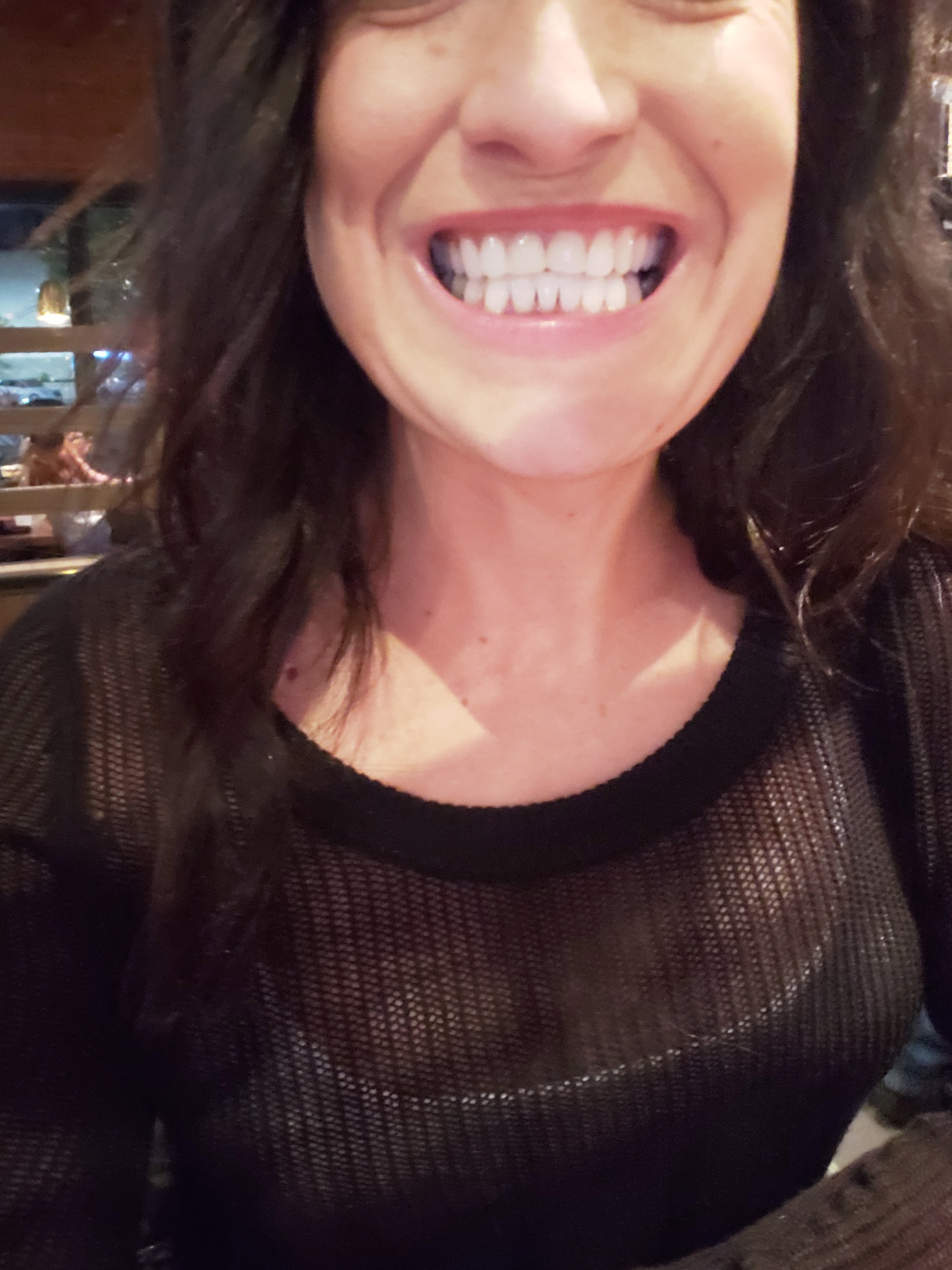 My teeth AFTER Invisalign and BEFORE my permanent teeth were put in - my teeth are still short in the front but the gap closed quite a bit and they were straightened in just months.