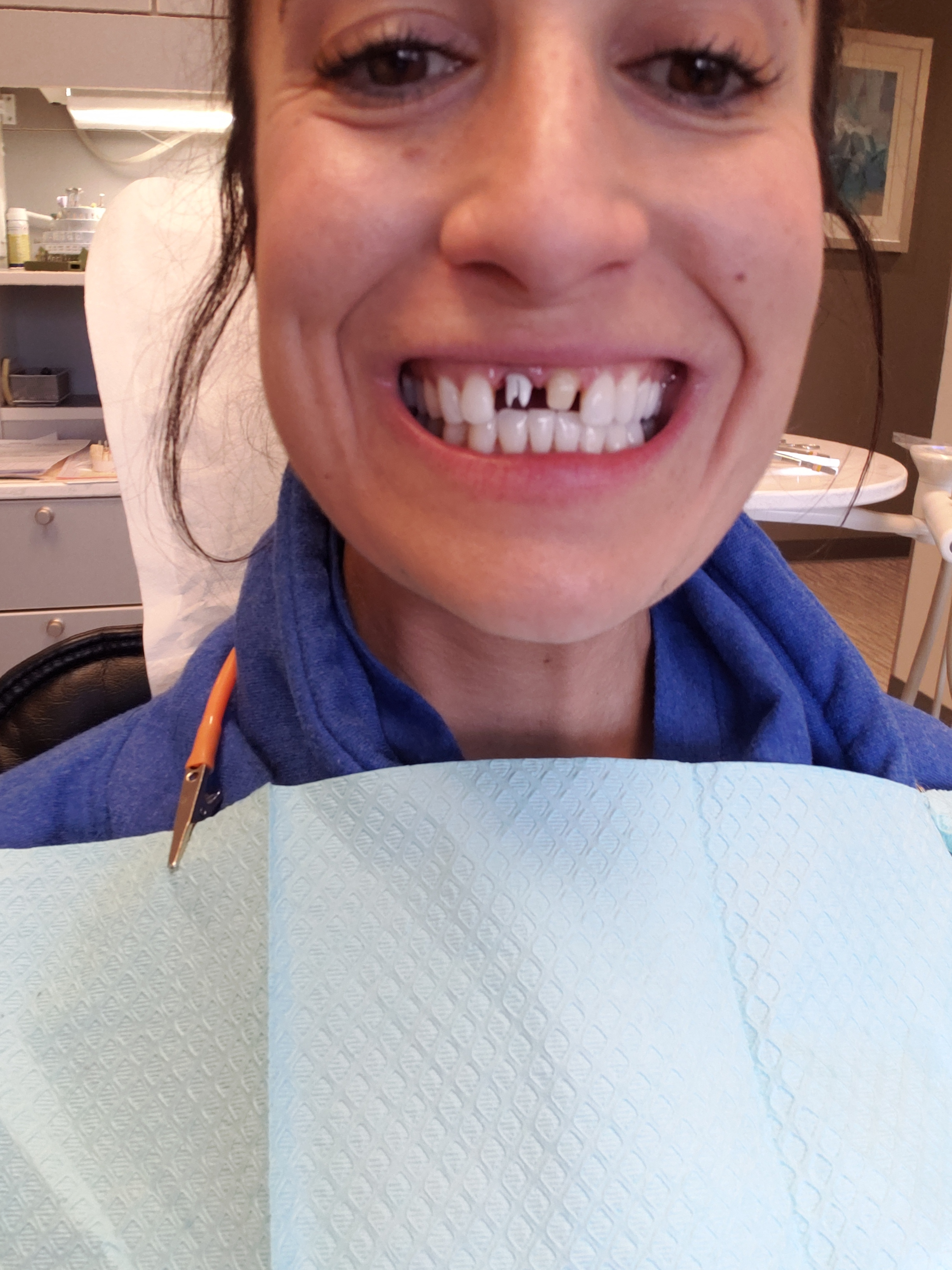 GROSSS! These are what my real tooth and my implant look like without the veneer (which goes over the tooth) and the implant veneer (which goes over the peg looking thing) it was a semi painless process and totally worth it! But not very pretty at all