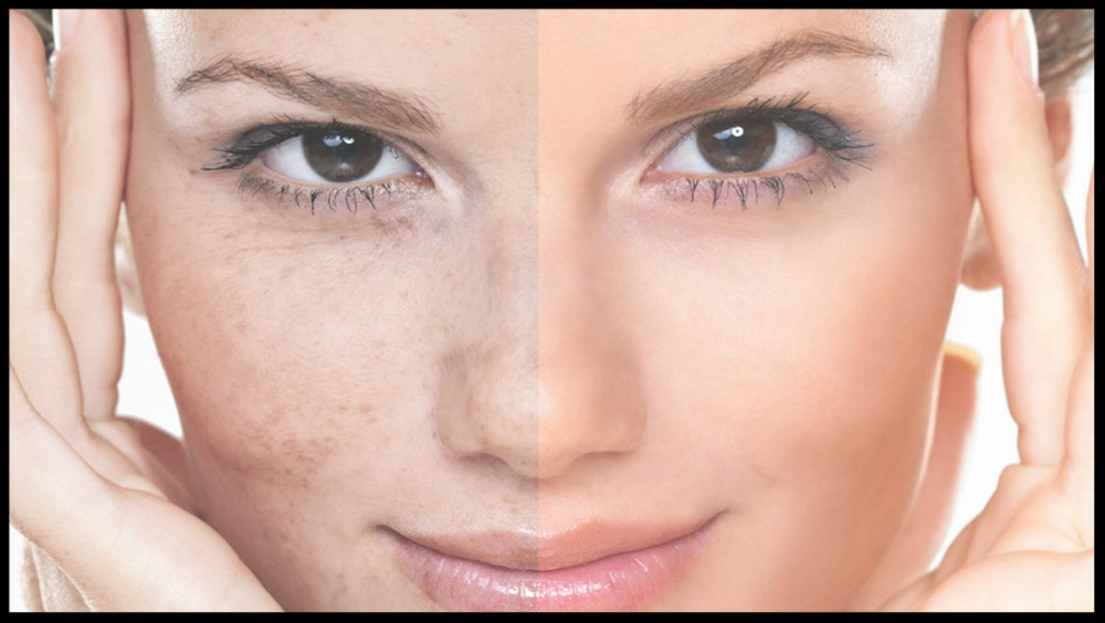 Skin-Pigmentation-Image.jpg