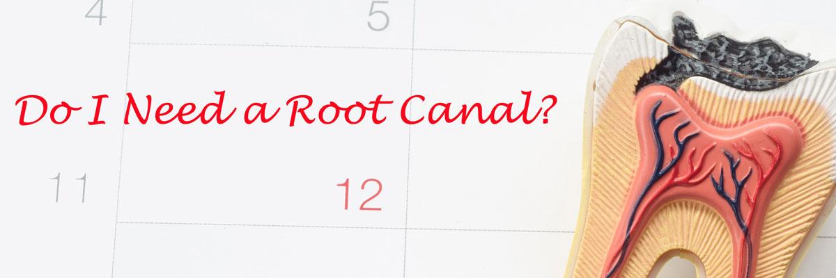 do-i-need-a-root-canal-header.jpg