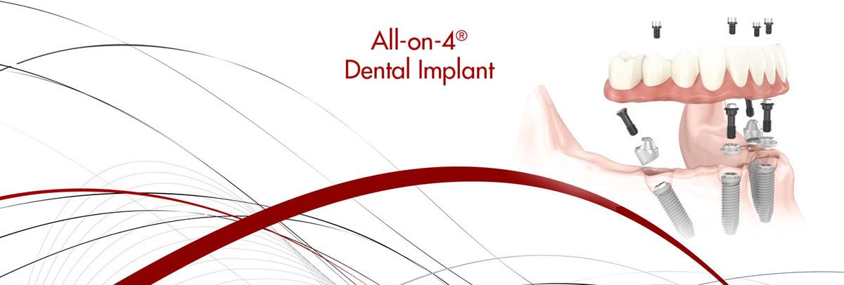 All-on-4 Dental Implants