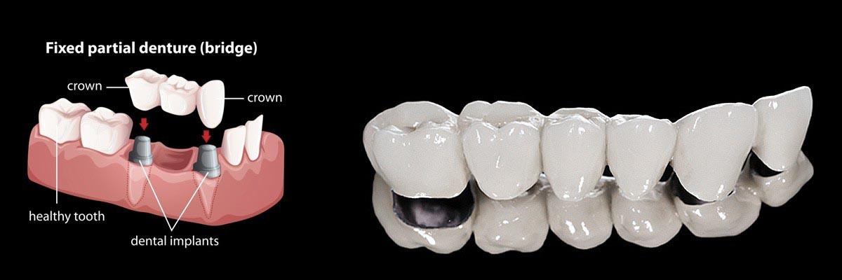 Dentures and Partial Dentures