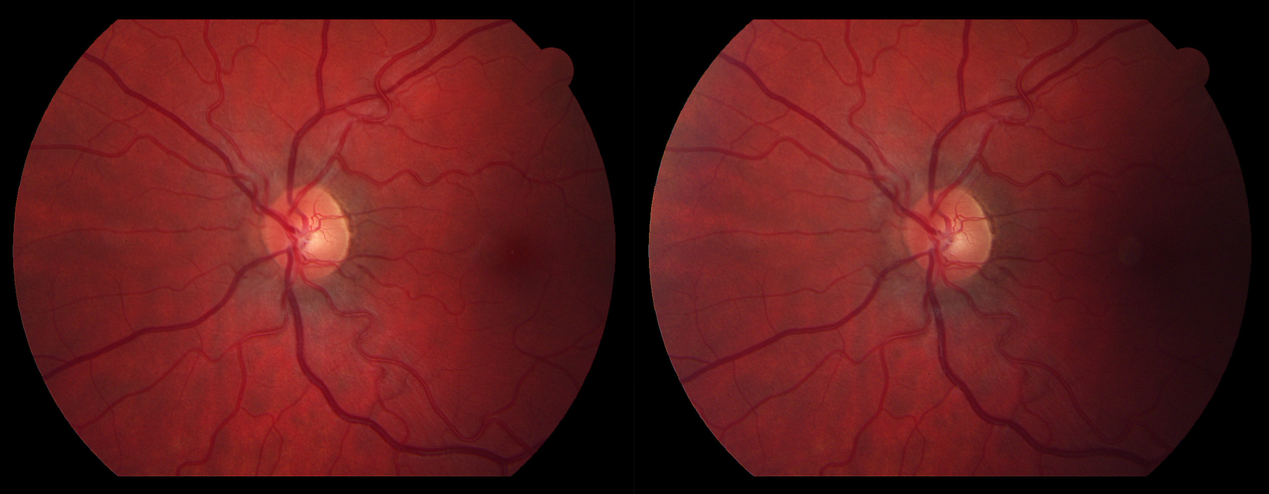 Oculus Sinister: Optic Disc Centered