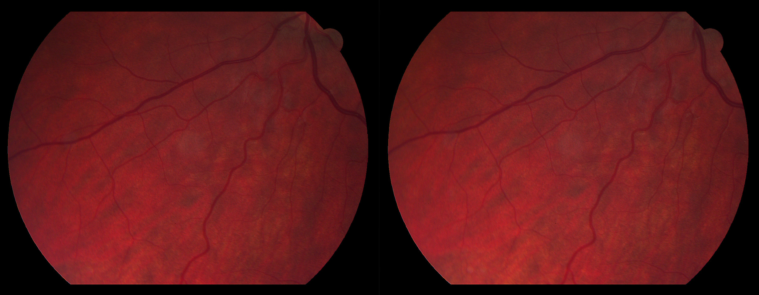 Oculus Sinister: Inferior Nasal