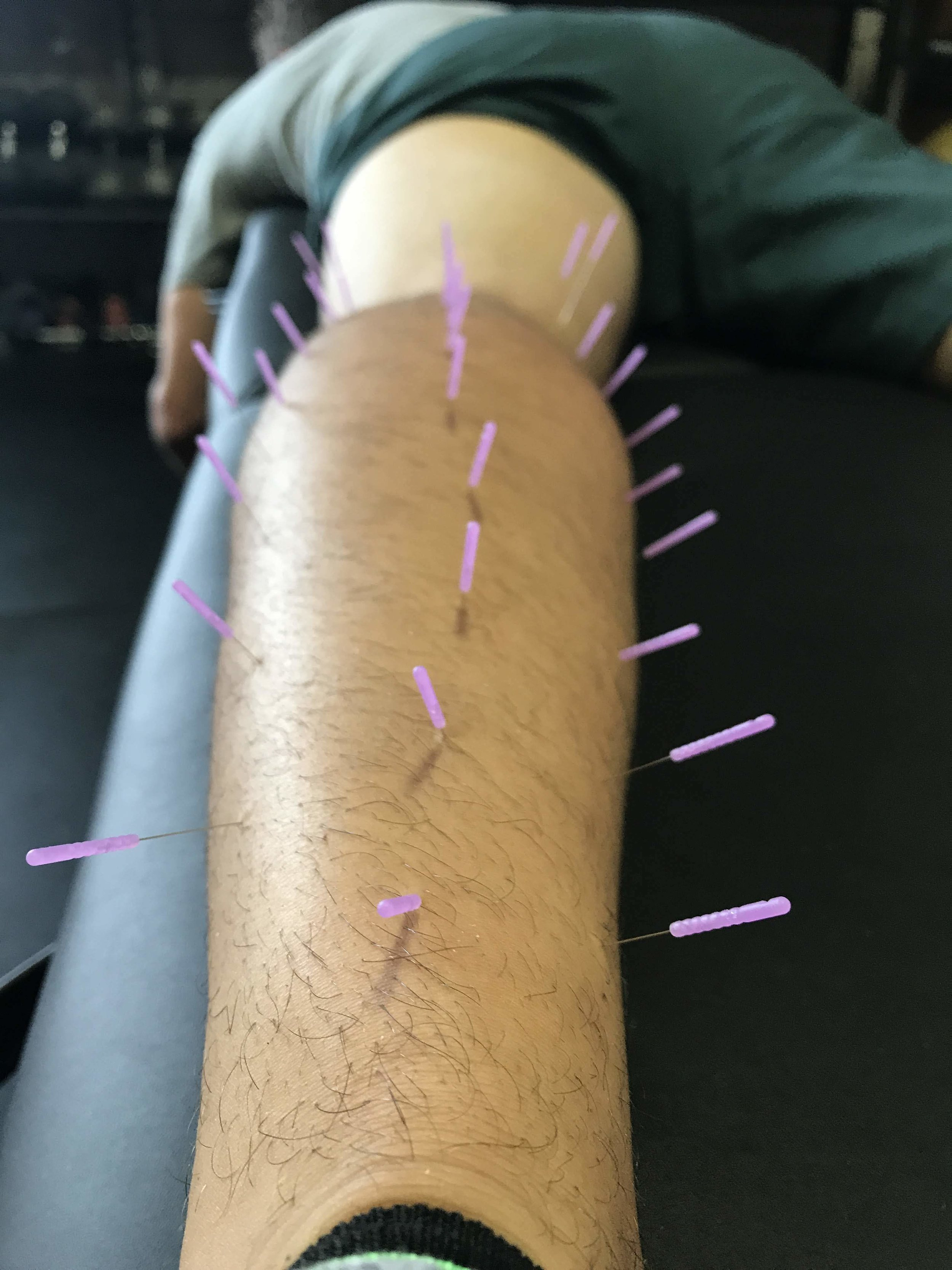 Using dry needling during a physical therapy treatment in Franklin, TN. This athlete is recovering form a calf muscle strain during a soccer match,